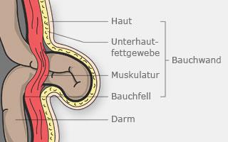 Bauchwandbruch anatomisch dargestellt